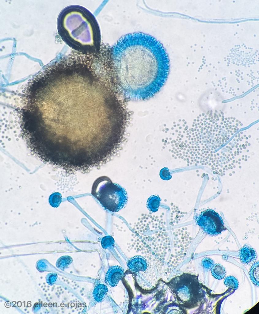 Aspergillus niger and Aspergillus fumigatus