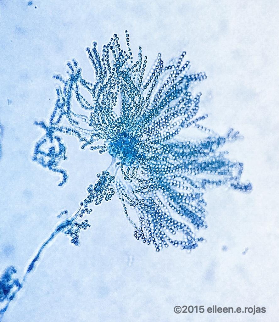 Aspergillus fumigatus.