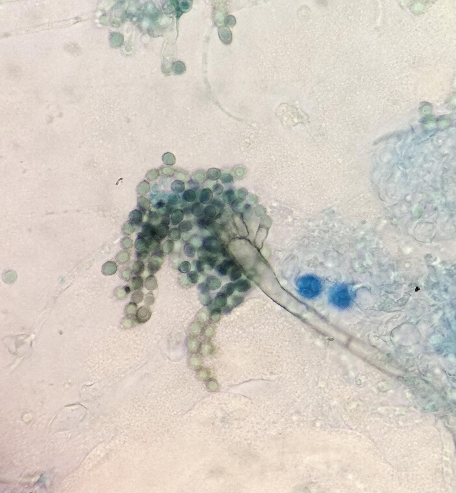 Aspergillus glaucus